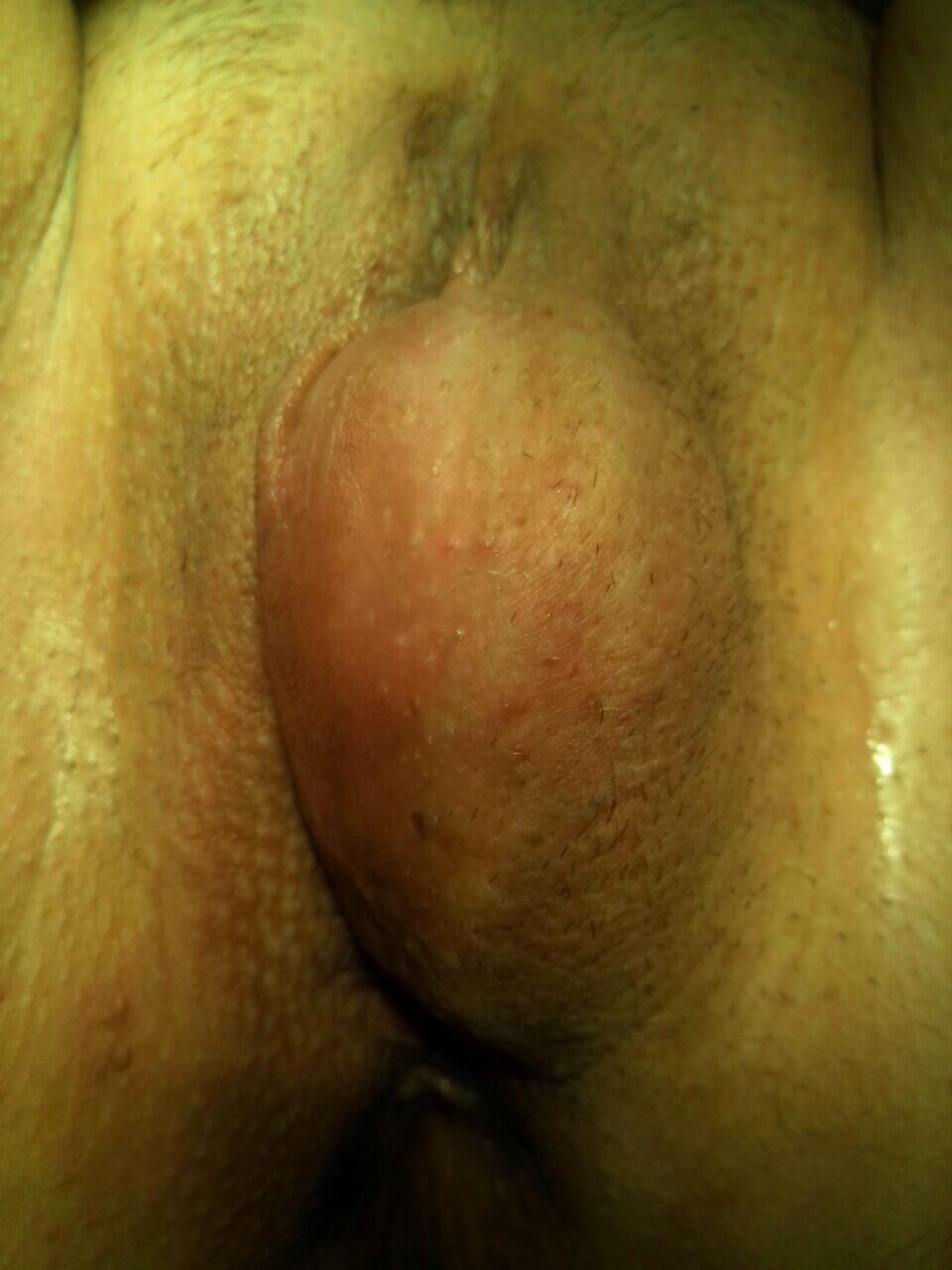 Киста бартолиниевой железы