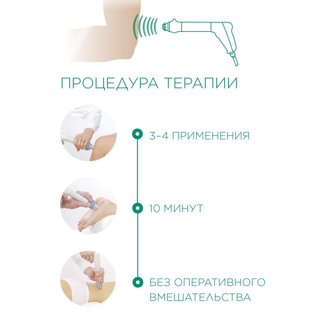 ударно-волновая терапия в ортопедии