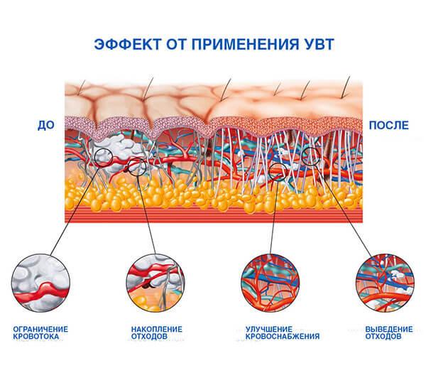 удаврно-волновая терапия при целлюлите